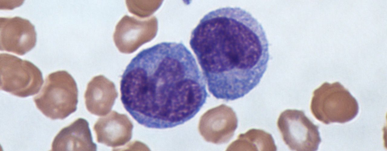 These lymphocytes, called monocytes, are partly how infectious mononucleosis got its name.