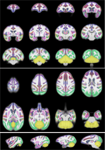 These colorized images of the brain reveal each individual region.