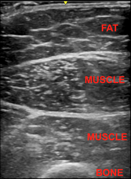 An ultrasound image showing the composition of a quadriceps muscle.